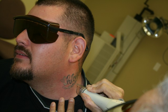 Tattoo removal program offers a clean slate california for Clean slate tattoo removal